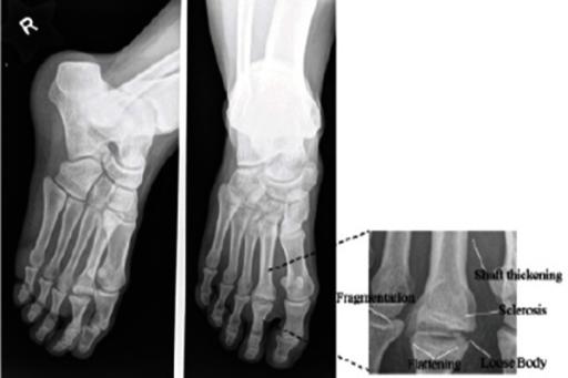 metatarsalis osteochondrosis)