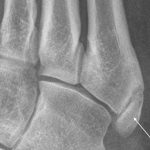 Accessory bone Os velanium of the foot