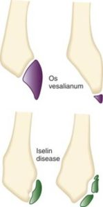 Os vesalnium and Iselin disease