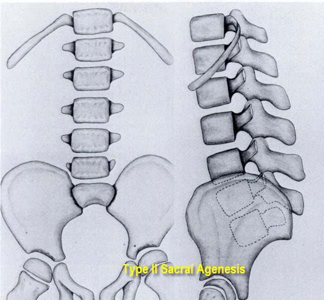 sacral agenesis bone and spine