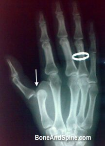 dislocation-MP joint