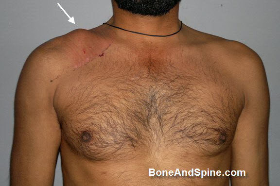 Deformity After Fracture Clavicle