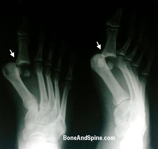Metatarsophalangeal Joint Dislocation of First Ray of Foot
