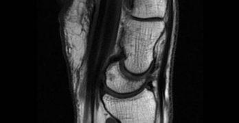 MRI of Dorsal Intercalated SegmentInstability