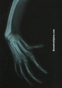 Radial Club Hand