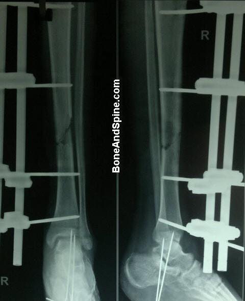 External Fixator In Tibia With Kwires In Heel