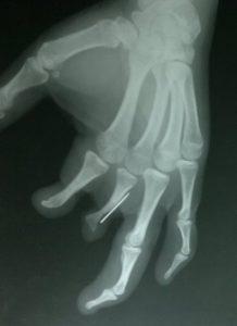 Needle In Finger