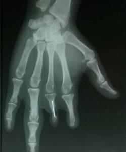 Broken Needle In Finger