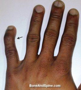 Mallet Finger