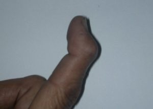 Other View of Mallet Finger Deformity In Index Finger