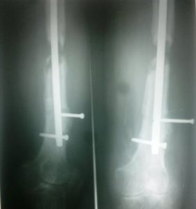 Non Union of Nailed Femur