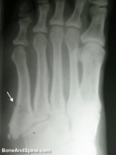 Oblique Fracture of Metaphysis of Fifth Metatarsal