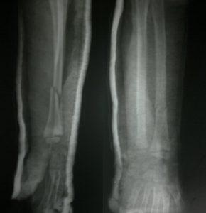 Radius Ulna Fracture In Child With Plaster In Situ