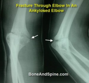 Fracture In Ankylosed Elbow