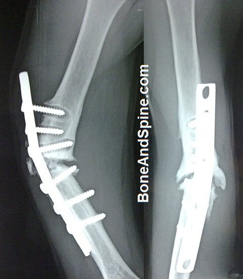 Screw Pull Out and Nonunion of Fracture Humerus