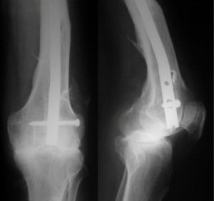 Intramedullary Supracondylar Nail In Fracture Femur or retrograde nail