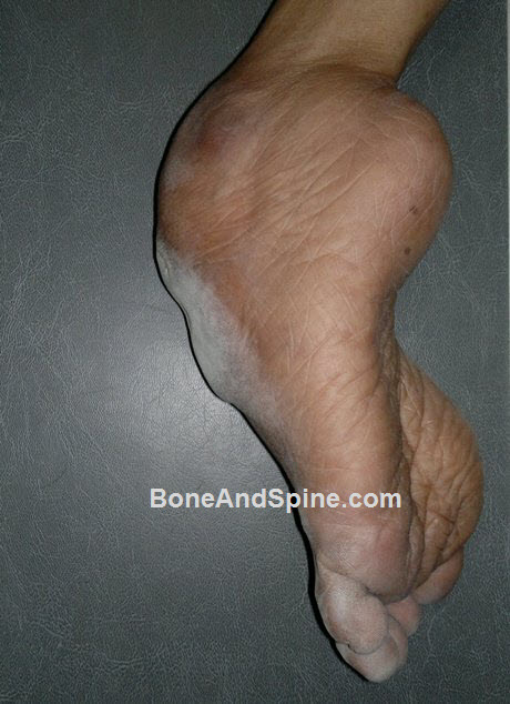 Clinical Photograph of Neglected CTEV in 65 Years Old Female