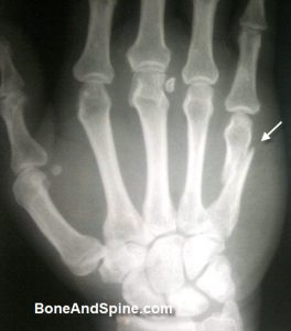 Oblique Fracture of Shaft of Fifth Metatarsal