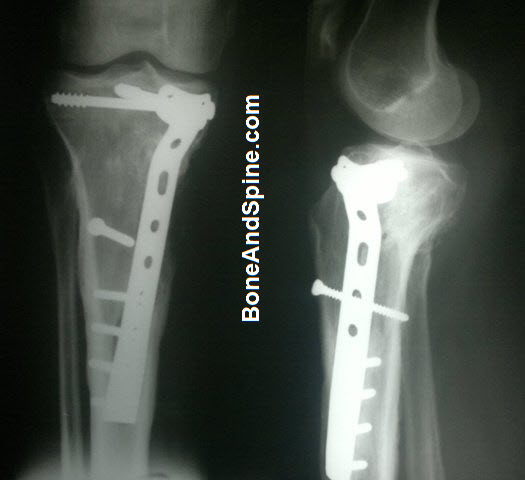 Fracture of Tibia Treated With Buttress Plateand Interfragmentary Screw
