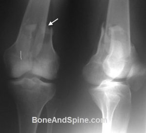 Knee xray showing Distal Femoral Fracture