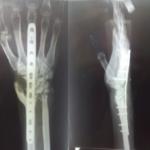 Wrist arthrodesis