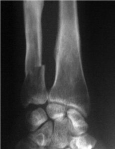 Xray of Undisplaced Fracture of Ulna In Distal Region