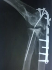 Broken Implant In Elbow