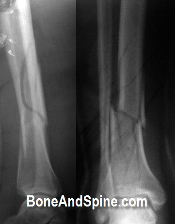 Comminuted Fracture of Tibia With Minimal Displacement