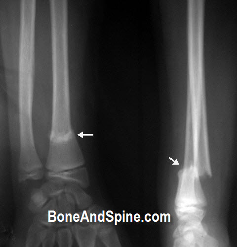 Fracture of Radius Bone In 14 Years Old Child