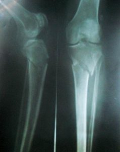 Fracture Upper Tibial Metaphyses