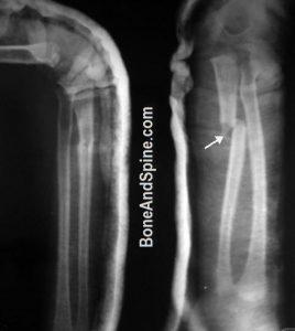 Monteggia Fracture Dislocation In A Child