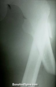 Preoperative Xray of Subtrochanteric Fracture Of Femur