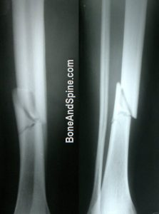 Comminuted Fracture of Tibia