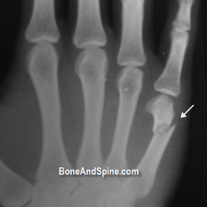 Fracture Fifth Metacarpal