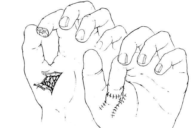 thenar flap for finger tip injuries