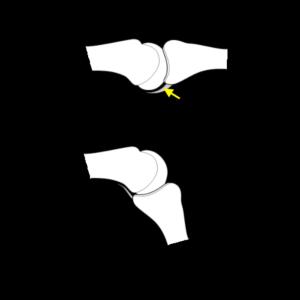volar plate