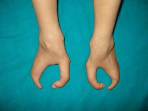 Ectrodactyly in both feet