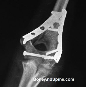 Anteroposterior View of Fixed Intercondylar Fracture