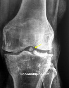 Knee xray showing loose bodies in knee joint