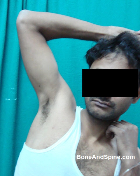 Luxatio Erecta Photograph Showing Abducted Arm