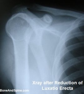Xray of Luxatio Erect After reduction