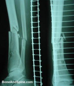 Comminuted Fracture Distal Tibia