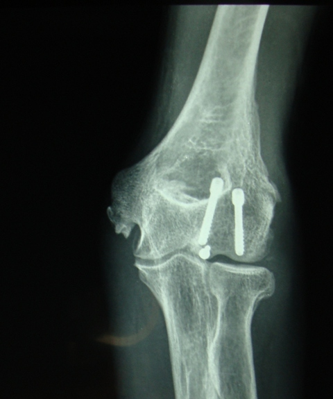 Post Op Xray - AP view