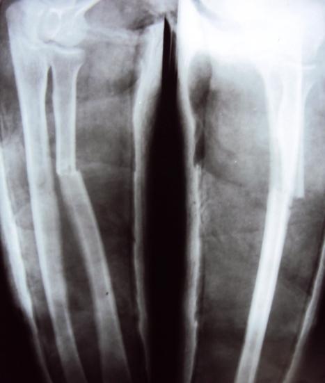 Fracture proximal radius
