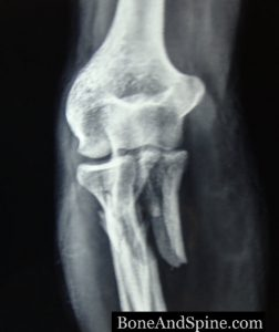 AP view of upper ulna fracture