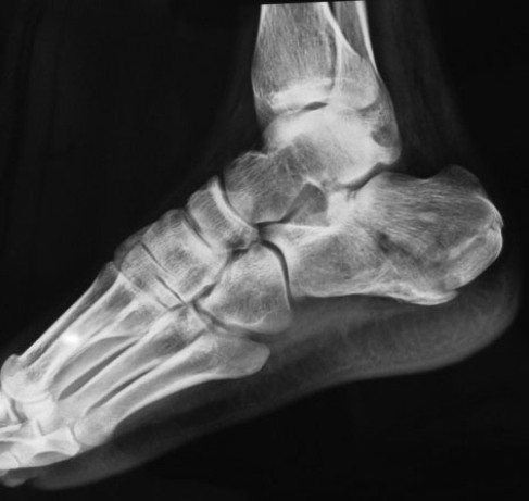 Left calcaneal fracture n same patient