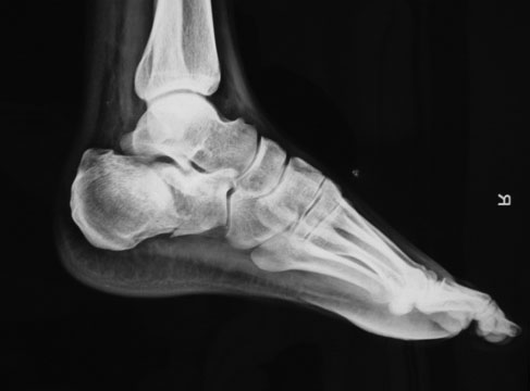 Right calcaneum fracture in patient with bilateral calcaneal fracture