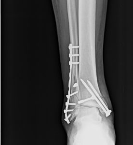anteroposterior xray of ankle showing operated fracture bimalleolar.