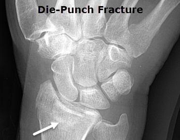 Die-punch Fracture