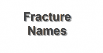 Fracture names